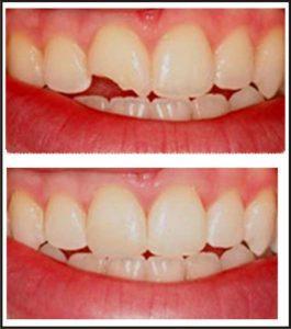 Composite Tooth Filling in Essex
