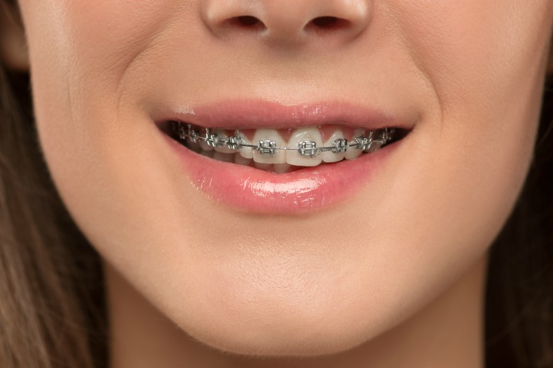 traditional-dental-braces