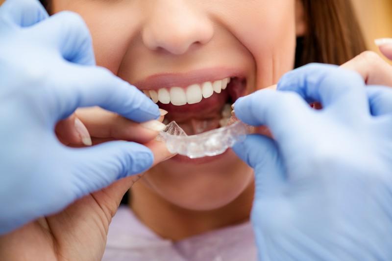 benefits-of-invisalign-over-braces